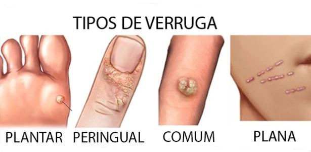 Confira os tipos de verruga, plantar, peringual, comum, plana