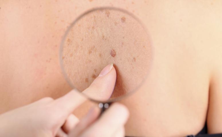 Como curar verrugas